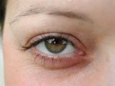 Holistic Program to Prevent and Support Eyes Problems